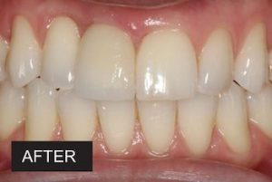After dental implants at leicester dentist