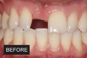 Before dental implants at leicester dentist