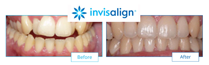 Invisalign Leicester