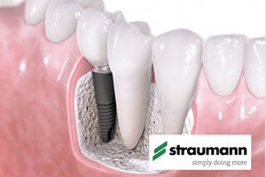 Dental Implants for missing teeth in Leicester