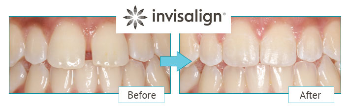 Invisalign dentist Leicester before and after treatment image
